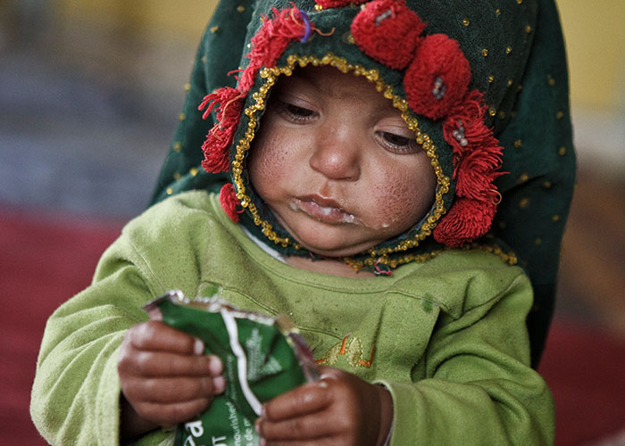 Baby in Afghanistan with Ready-to-use Therapeutic Food (RUTF)