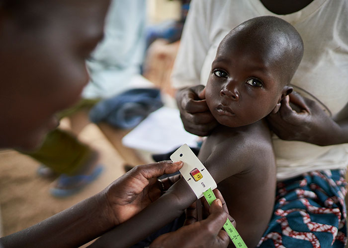 A child is screened for malnutrition at an Action Against Hunger treatment centre in Cameroon.