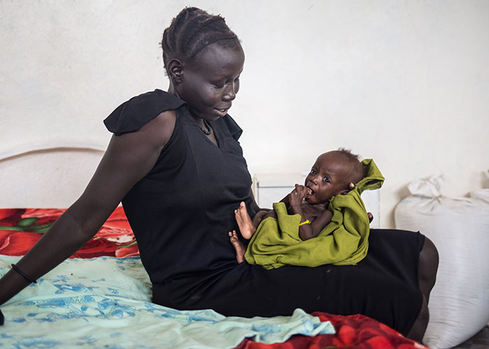 Nyajepe, a South Sudanese refugee, is happy to see the improvement in her child after they received support from Action Against Hunger.