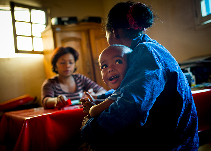 A child being treated for malnutrition in Madagascar.